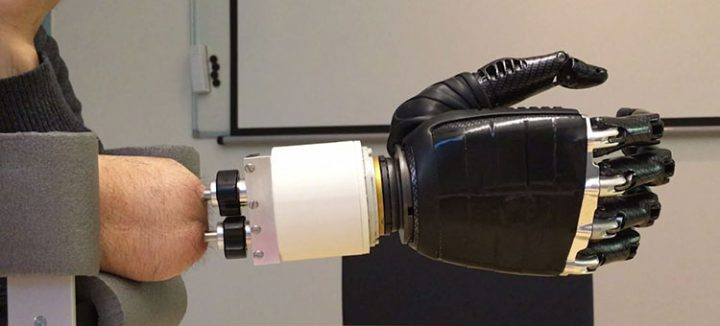 スウェーデンの研究グループが新しい人工関節を発表 インプラント式で前腕の回転が可能に