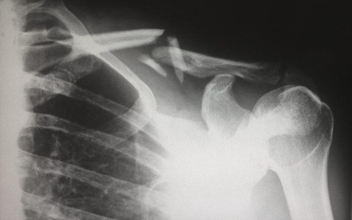 現代の子どもは早く成熟する!? 過去100年の子どもの骨の癒着を分析