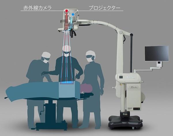 プロジェクションマッピングの技術を医療の現場に応用 手術ガイドシステム「MIPS」を京都大学が開発