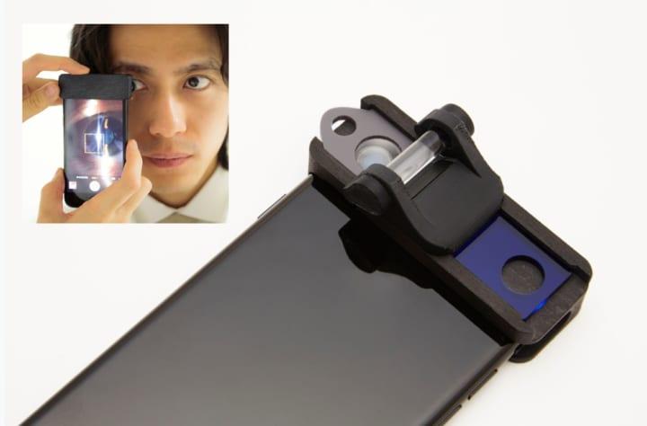 慶大医学部発の企業がスマホで眼科の診察を 可能にする医療機器「Smart Eye Camera」を開発