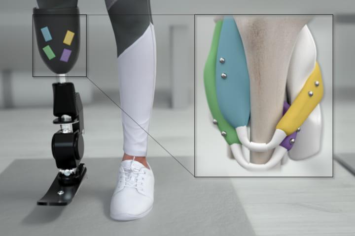 これまで以上に義足をうまく制御できる 磁気ベースの新しい方法をMITが開発